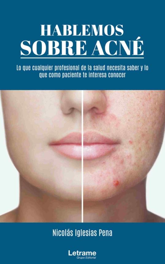 hablemos sobre acne